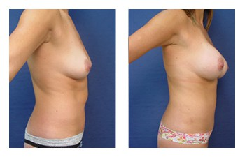 Breast Augmentation Orange County