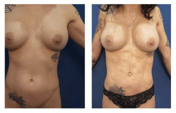 4d high definition liposuction patient 1 front view