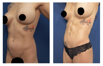 4d high definition liposuction