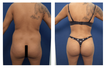 buttock augmentation patient 1 back view