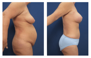 Liposuction complications