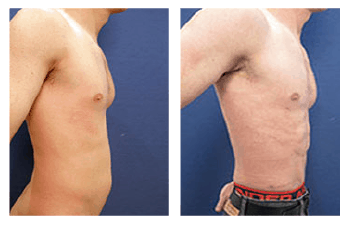 Abdominal etching with VASER liposuction