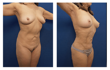 vaser lipo surgery patient 2 front right view