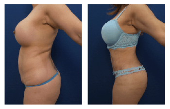 Best Liposuction results