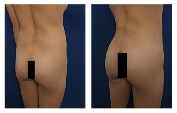 buttock augmentation patient 2 back right view