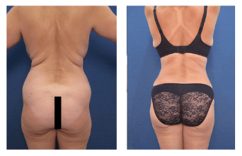 brazilian buttock lift patient 3 back view