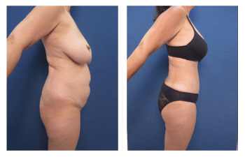 Brazilian Buttock Lift Recovery