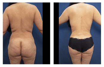 VASER lipo back and waist