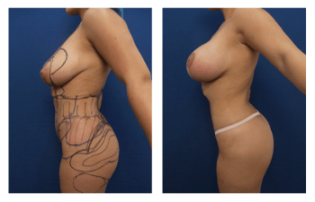 VASER liposuction Beverly Hills