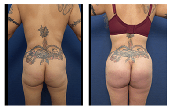 Round vs oval buttock implants