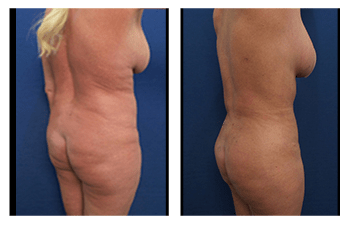 no Liposuction Side Effects