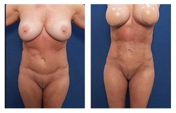 VASER liposuction correction