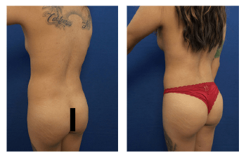 brazilian buttock lift patient 6 back left view