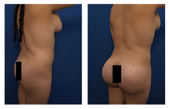 buttock implants patient 6 back right view