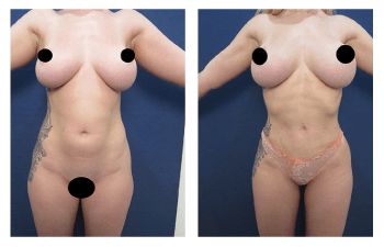 Southern California Liposuction