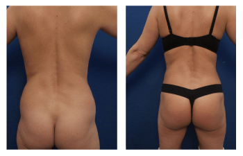 brazilian buttock lift patient 7 back view
