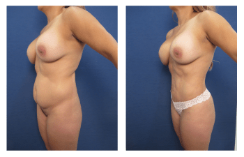 liposuction patient 7 front left view