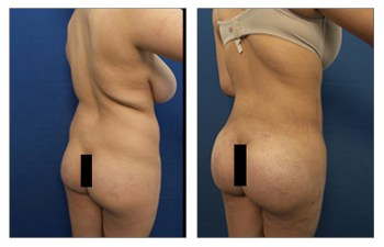 buttock implants surgery back right view