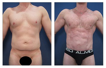 liposuction laser before and after