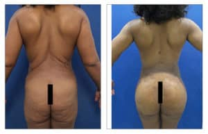 buttock implant surgery