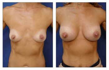 Breast Augmentation Orange County, CPSI.