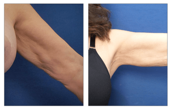 left arm lift surgery without a scar