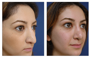 open rhinoplasty surgery front right view