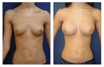Breast Augmentation Recovery, CPSI.