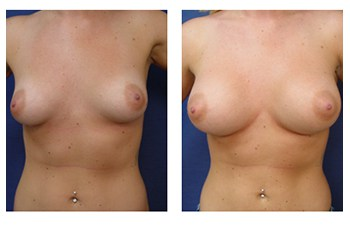 Breast Augmentation Surgery Price, CPSI.