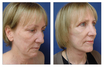 Mini Facelift Before and After Pictures