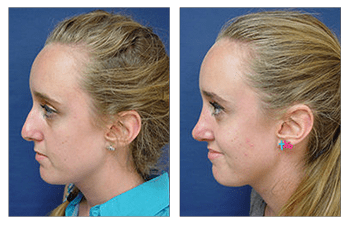 open rhinoplasty patient 11 left view