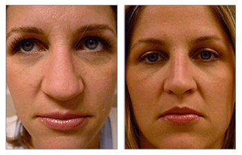 Open Rhinoplasty Cosmetic Plastic Surgery Institute