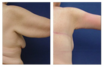right arm band deformity surgery before and after