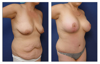 breast lift with implants Newport Beach