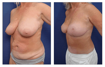 augmentation, body, procedures,