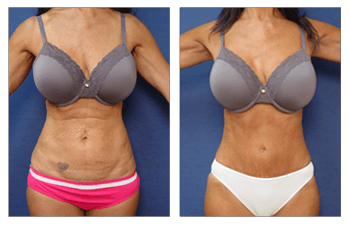 tummy tuck with muscle tightening Beverly Hills