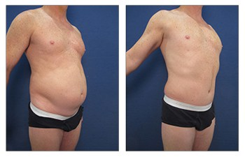 tummy tuck men 3 before and after