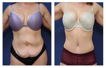 tummy tuck patient 31 front view
