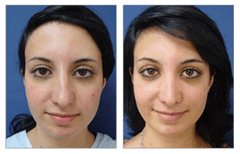 crooked nose bridge patient 4 before and after