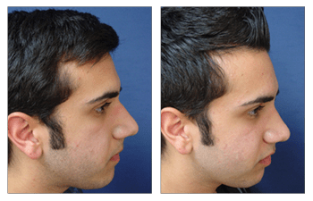 Crooked Nose Surgery Before and After
