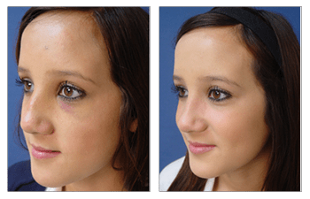 crooked nose rhinoplasty patient 7 front left view