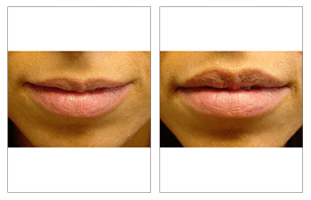 facial filler patient 5 before and after