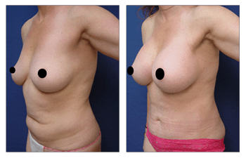 mini tummy tuck patient 27 front left view, Eliminating Upper Belly Stretch Marks