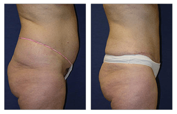 liposuction of the abdomen Los Angeles