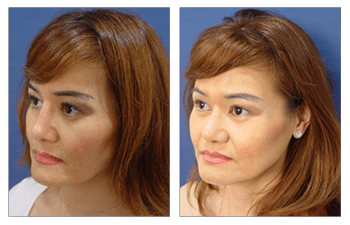 revision rhinoplasty patient 4 front left view