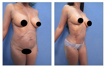 liposuction surgery front right view