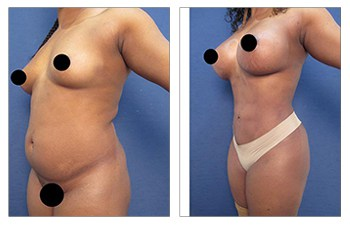 high definition liposuction front left view
