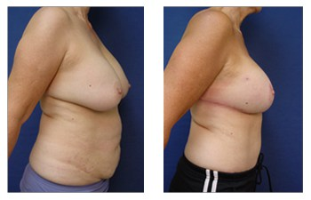 Breast Augmentation Revision Cost