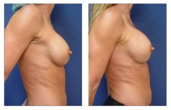 Breast implant in Newport Beach