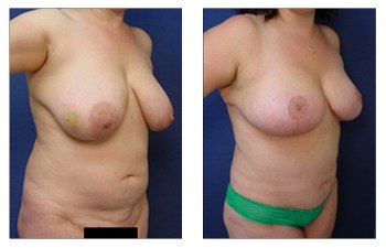 Cheapest Breast Lift